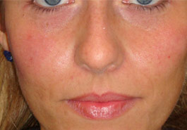 Fillers to replump face – After