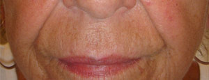 Fillers to replump face – Before