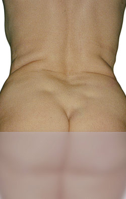 Endermologie, Before