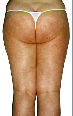Endermologie, After