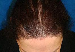 FUT Hair transplant, After