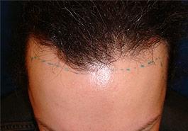 FUT Hair transplant, Before