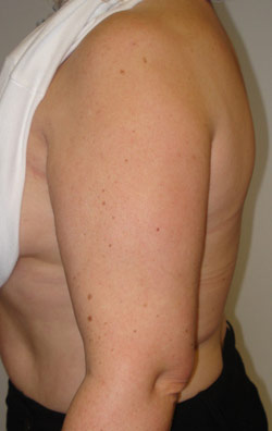 Liposuction Arms – After