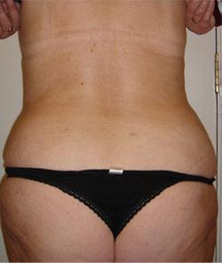 Liposuction Back – After