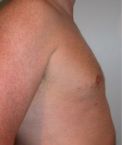 Liposuction – After