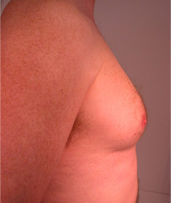Liposuction – Before
