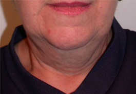 Liposuction Chin – Before