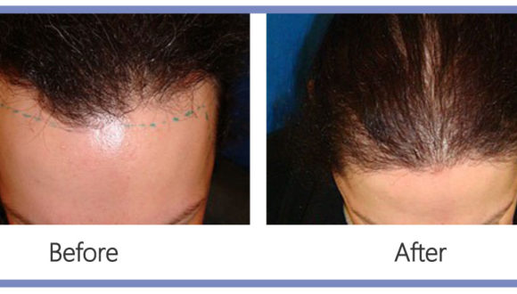Hair Transplant and Hair Loss Cardiff
