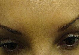 Frown lines after Botulinum Toxin