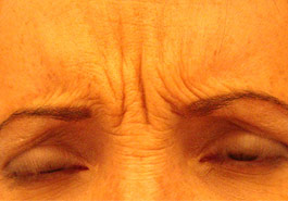 Frown lines before Botulinum Toxin