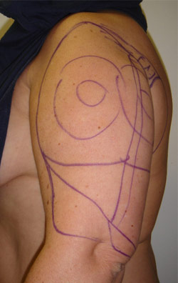 Liposuction Arms – Before