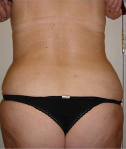 Liposuction Back – After