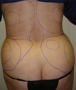 Liposuction Back – Before