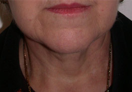 Liposuction Chin – After
