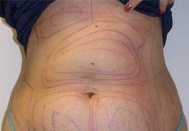 Liposuction stomach – Before
