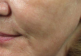 SmartXide for ageing, After