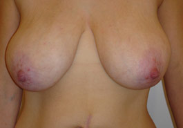 Breast reduction – After