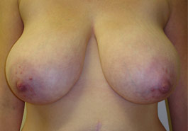 Breast reduction – Before