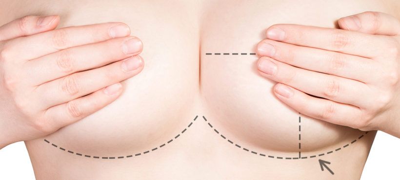 Breast Reduction using Liposuction